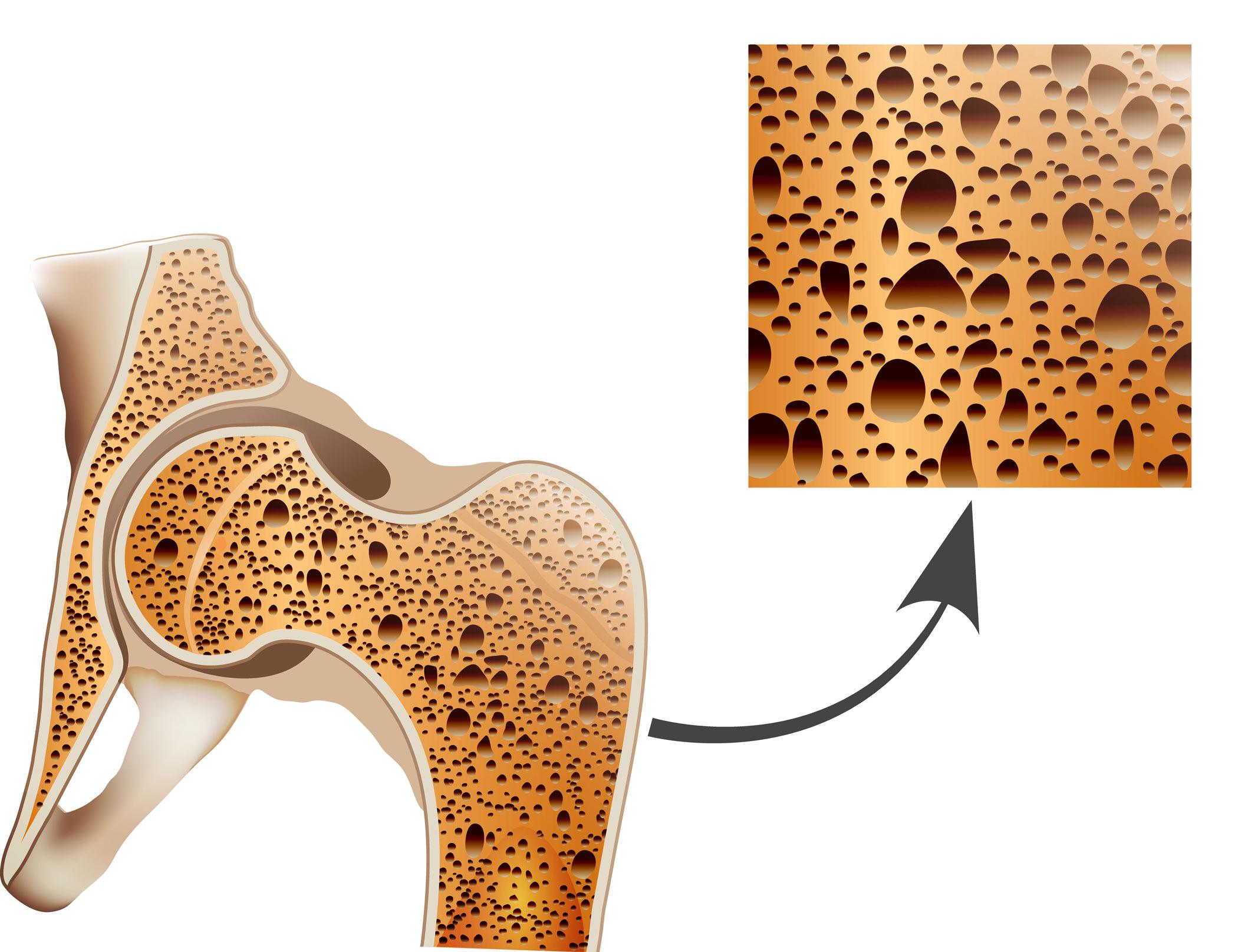 o-que-e-osteoporose